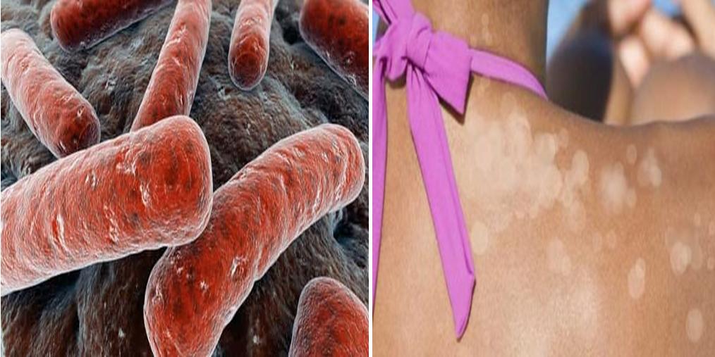 أسباب وعلاج التينيا الملونة
