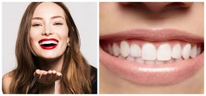 طرق طبيعية لتبيض الاسنان