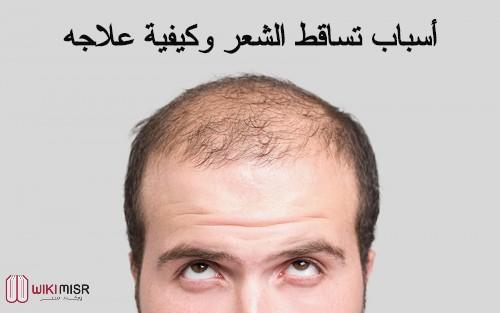 أسباب تساقط الشعر وطرق علاجه