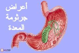 أعراض وكيفية علاج جرثومة المعدة