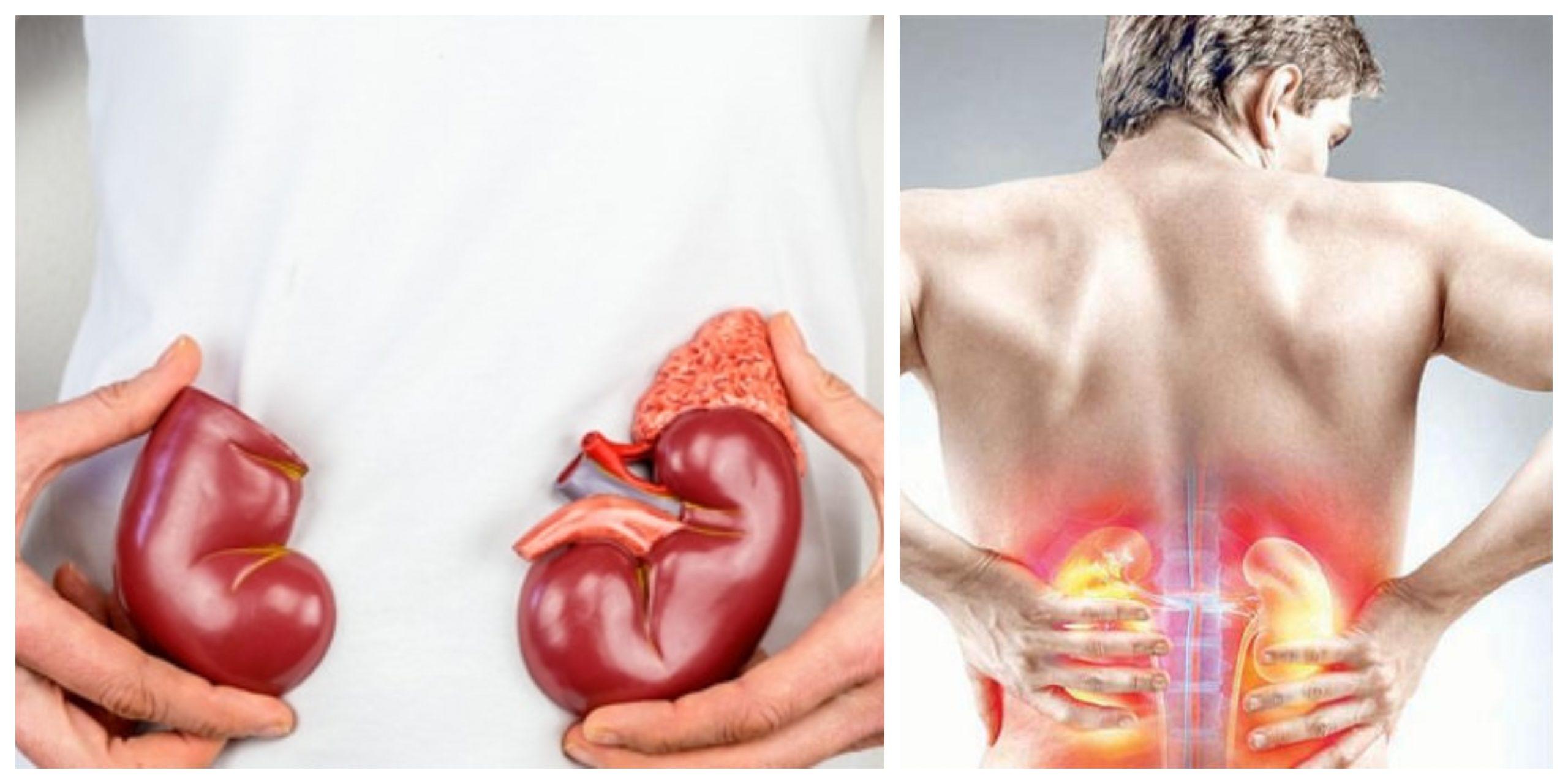 علاجات منزلية تساعد على تنظيف الكلى من السموم بشكل طبيعي