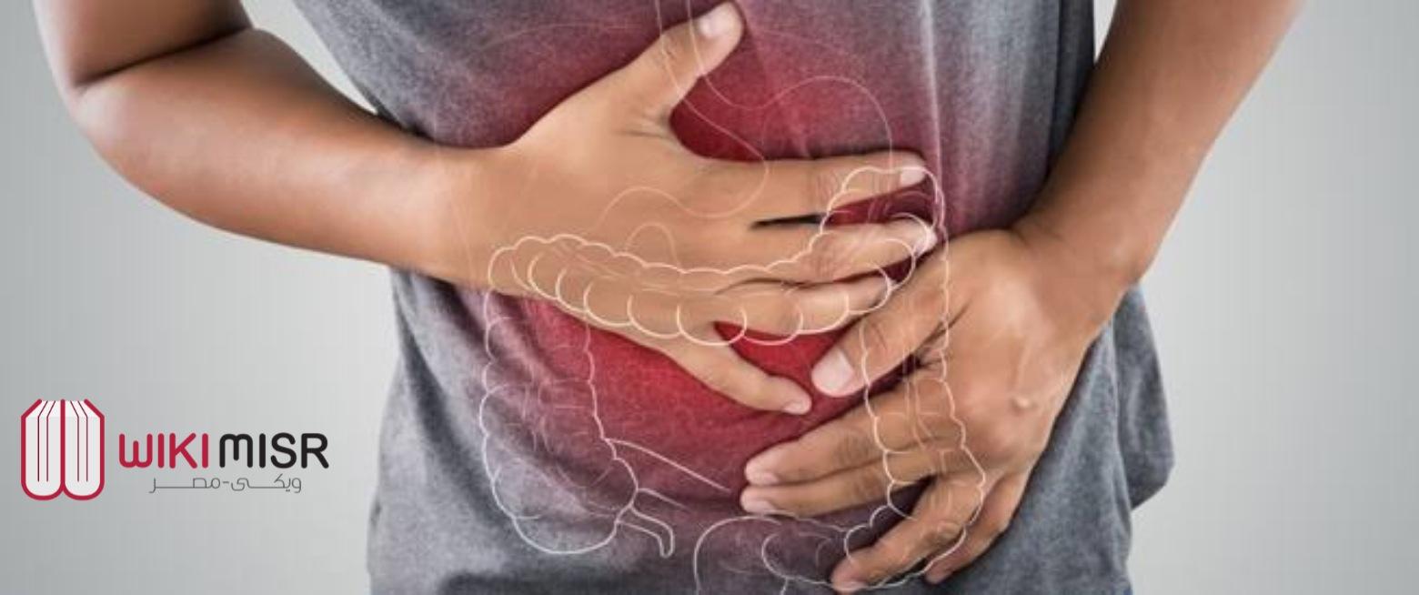 علاج التهاب القولون العصبي والاعراض المصاحبة واسباب حدوثه