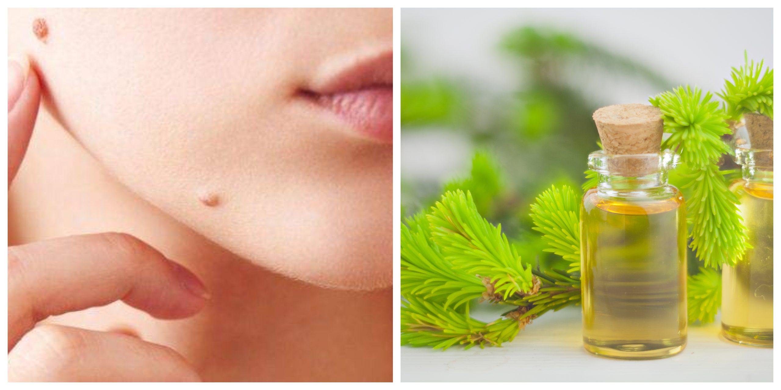 وصفة سهلة للتخلص من الزوائد الجلدية باستخدام زيت شجرة الشاي