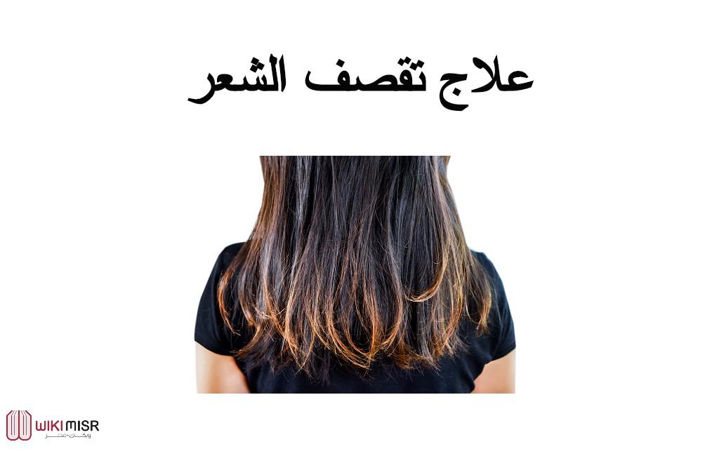 أهم طرق علاج تقصف الشعر