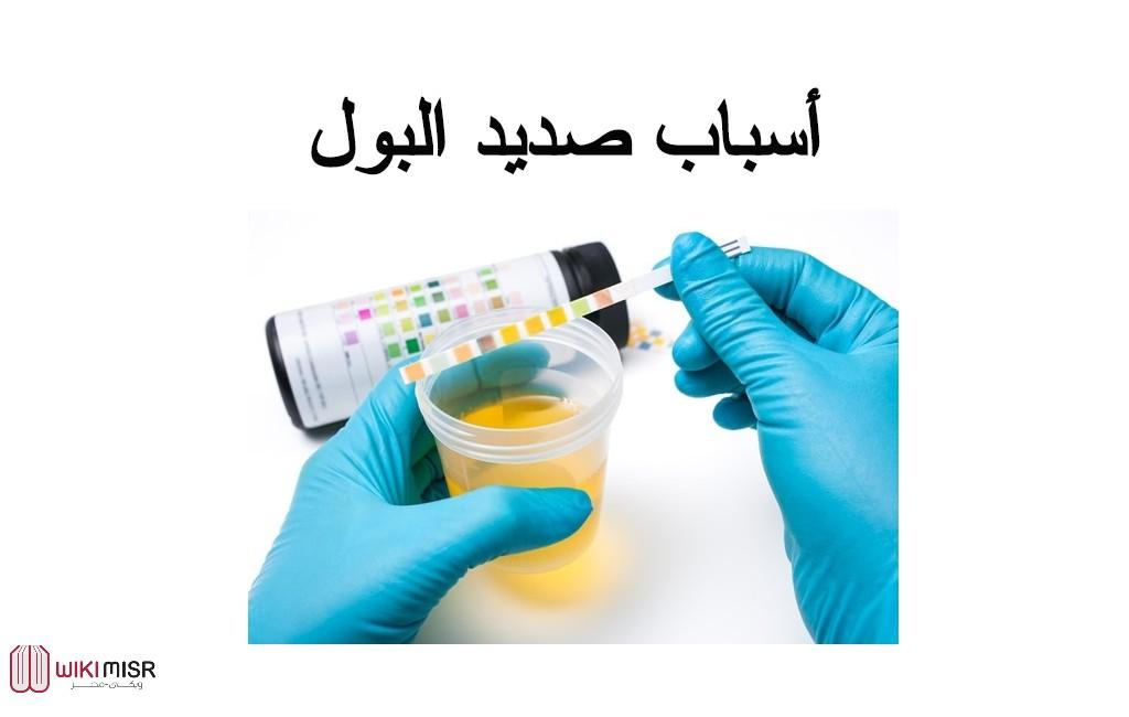 أسباب الإصابة بصديد البول والأعراض وأهم طرق العلاج