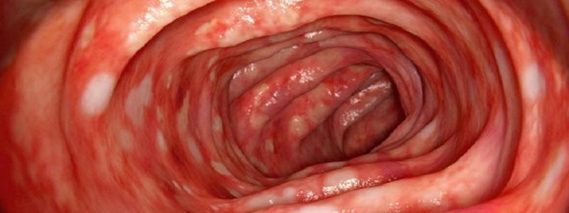 أعراض قرحة المعدة والقولون