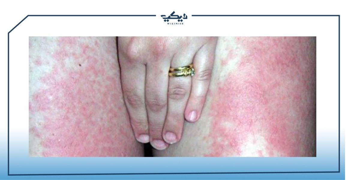 احمرار الجلد