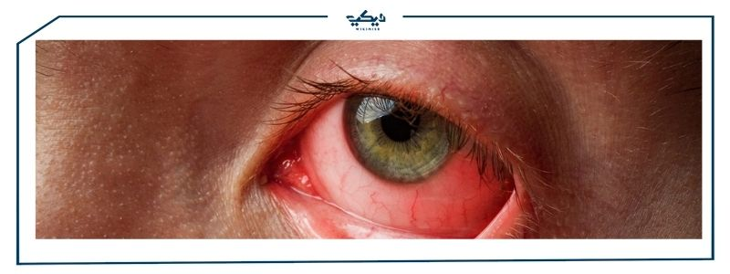 تعرف على ادوية التهاب العين !