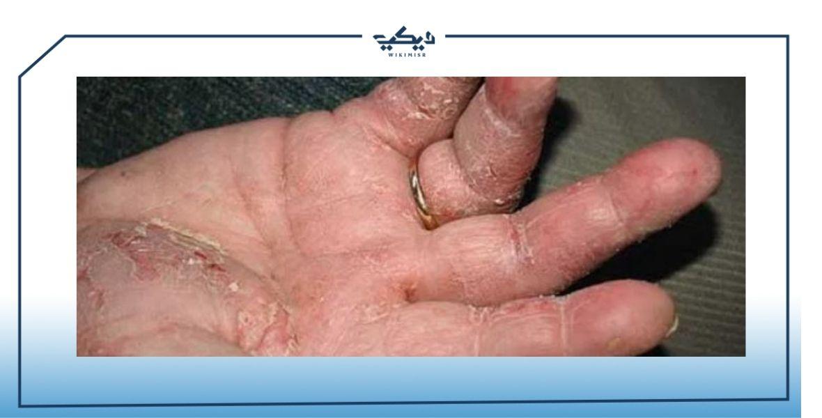 جفاف الجلد