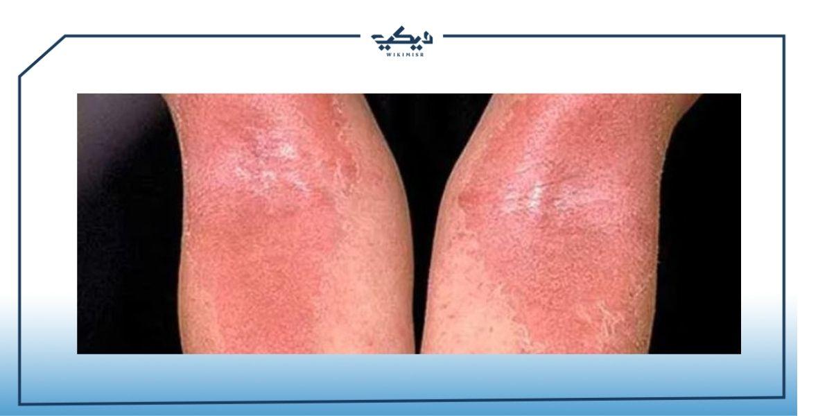 حساسية الجلد والهرش