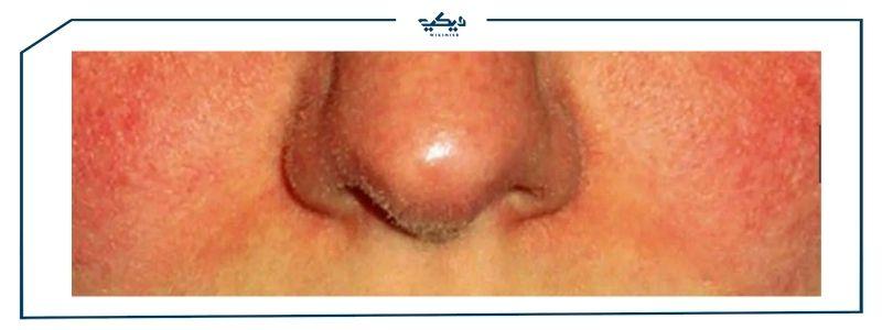 علاج حساسية الجلد والهرش – الأسباب والأعراض