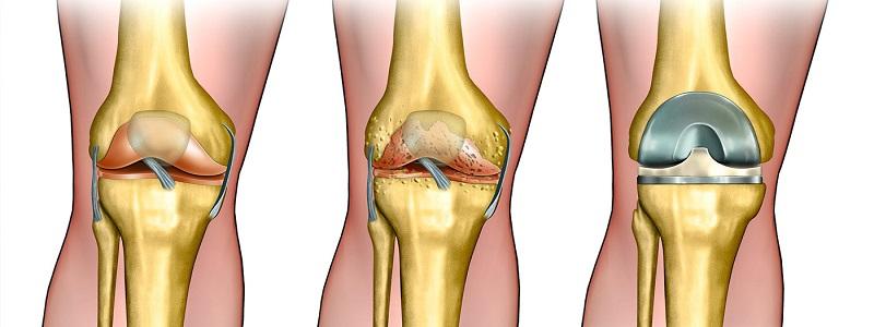 علاج غضروف الركبة و أعراضه