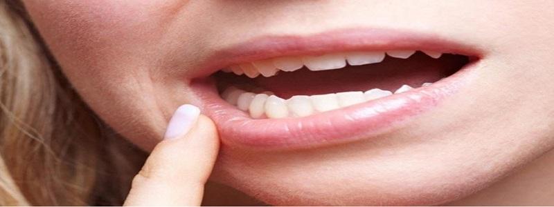 فطريات الفم | طرق علاج الإصابة بفطريات الفم واللسان