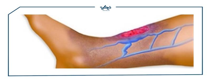 أعراض ضيق الأوعية الدموية الطرفية