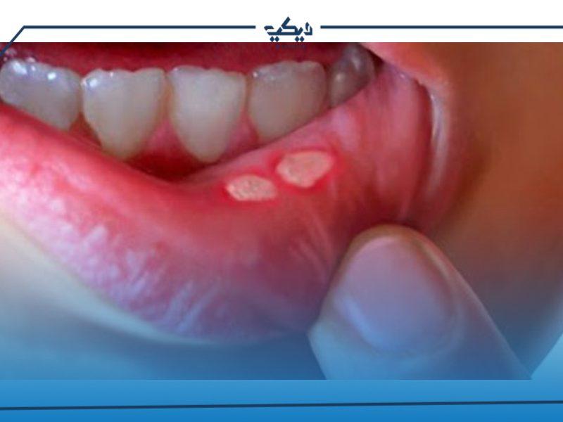 ادوية علاج فطريات الفم في الصيدليات