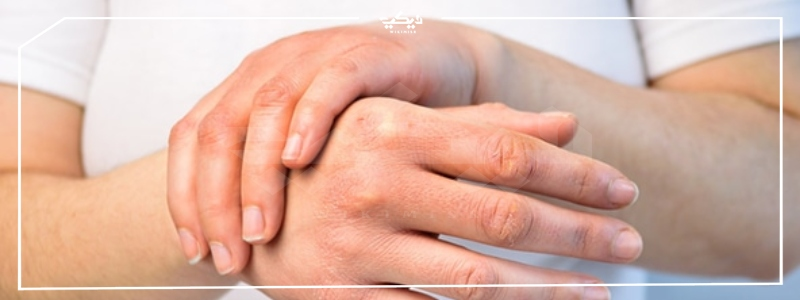 اسماء حقن حساسية الجلد واسعارها وأعراض هذا المرض