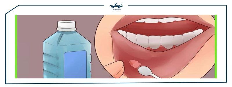 سعر أفضل ادوية تقرحات الفم