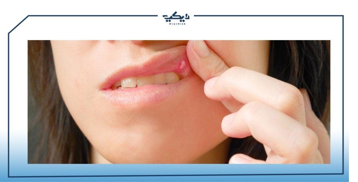 أشكال تقرحات الفم