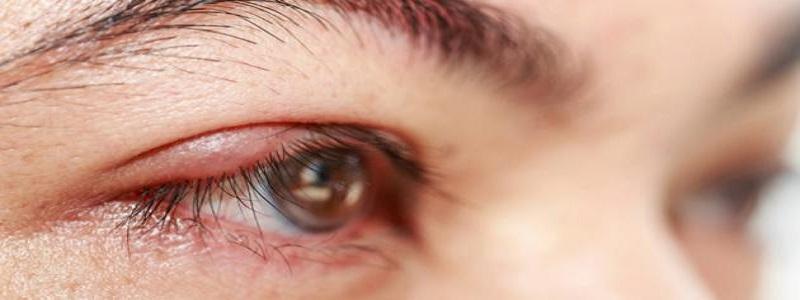 دواعي استعمال مرهم tobrex والأعراض الجانبية له