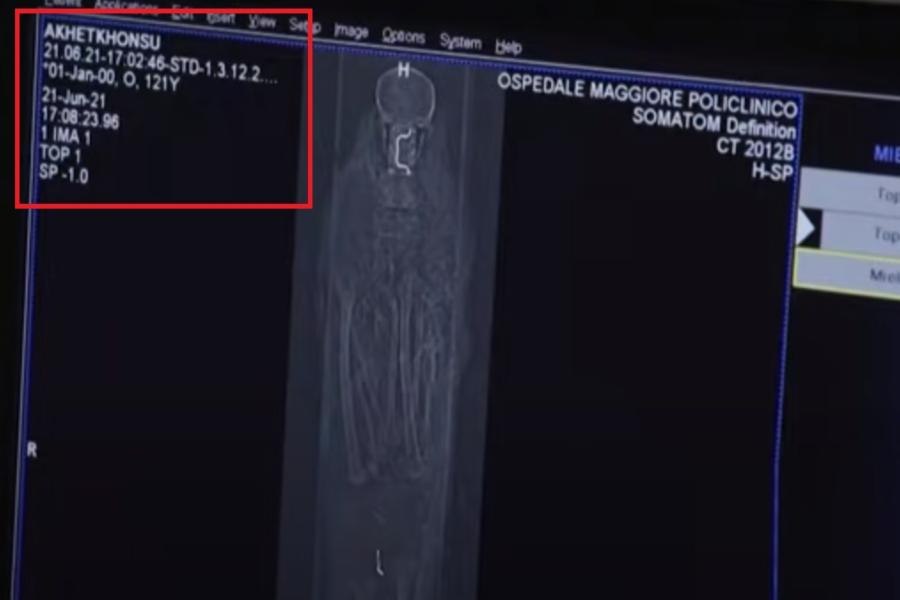 """بيانات جهاز الأشعة المقطعية تصف صاحب المومياء باسم """"آخت خونسو""""."""