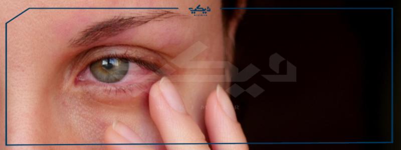 التهاب العين الوردي