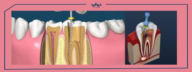 حشو العصب للأسنان ومضاعفات مابعد الحشو