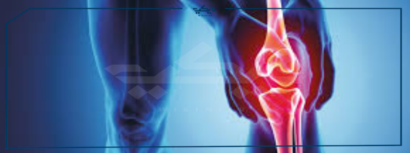 علاج خشونة الركبة