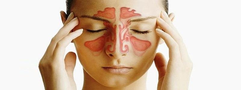 أعراض التهاب الجيوب الأنفية المزمن وعلاجه