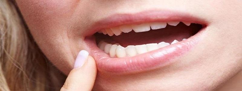 أدوية علاج التهاب اللثة والأسنان وآثارها الجانبية
