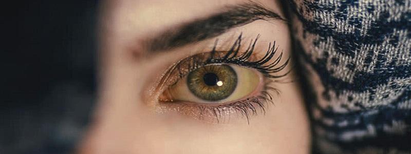 أسباب اصفرار العين وأعراضه وعلاجه